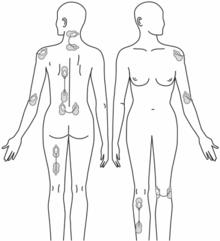 Painmaster smärtlindring och smärtbehandling